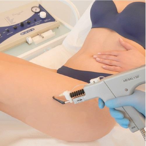 LPG Lipomassage™ wraz z Karboksyterapią MESALYSE