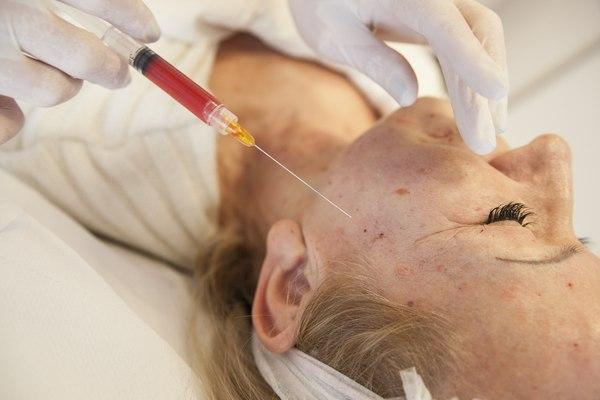 Zabieg z wykorzystaniem komórek macierzystych / fot. materiały prasowe Medycyny Młodości