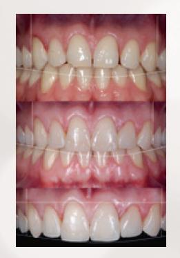 Delikatna korekta linii uśmiechu – Design Smile / fot. materiały prasowe