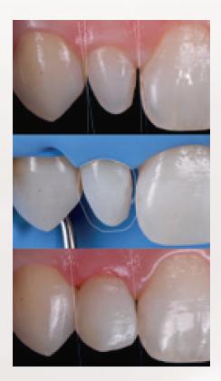 Nieprawidłowości w budowie zębów, wady rozwojowe to dość częsty i powszechny problem / fot. materiały prasowe