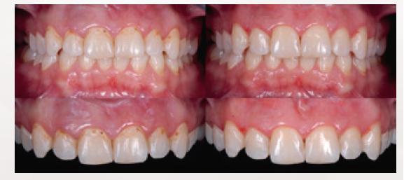 Zaburzenia mineralizacji szkliwa w okolicy szyjek zębów przednich / fot. materiały prasowe