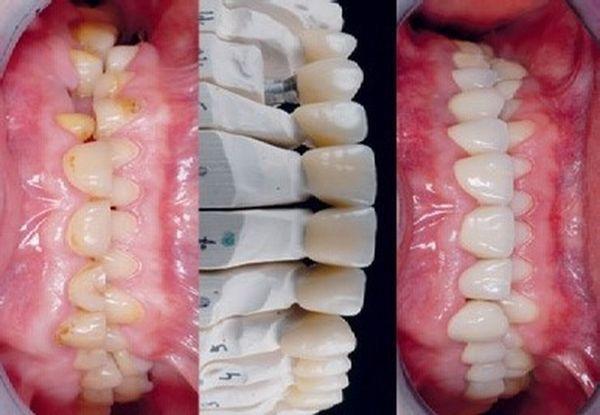 Pacjent ze starciem zębów