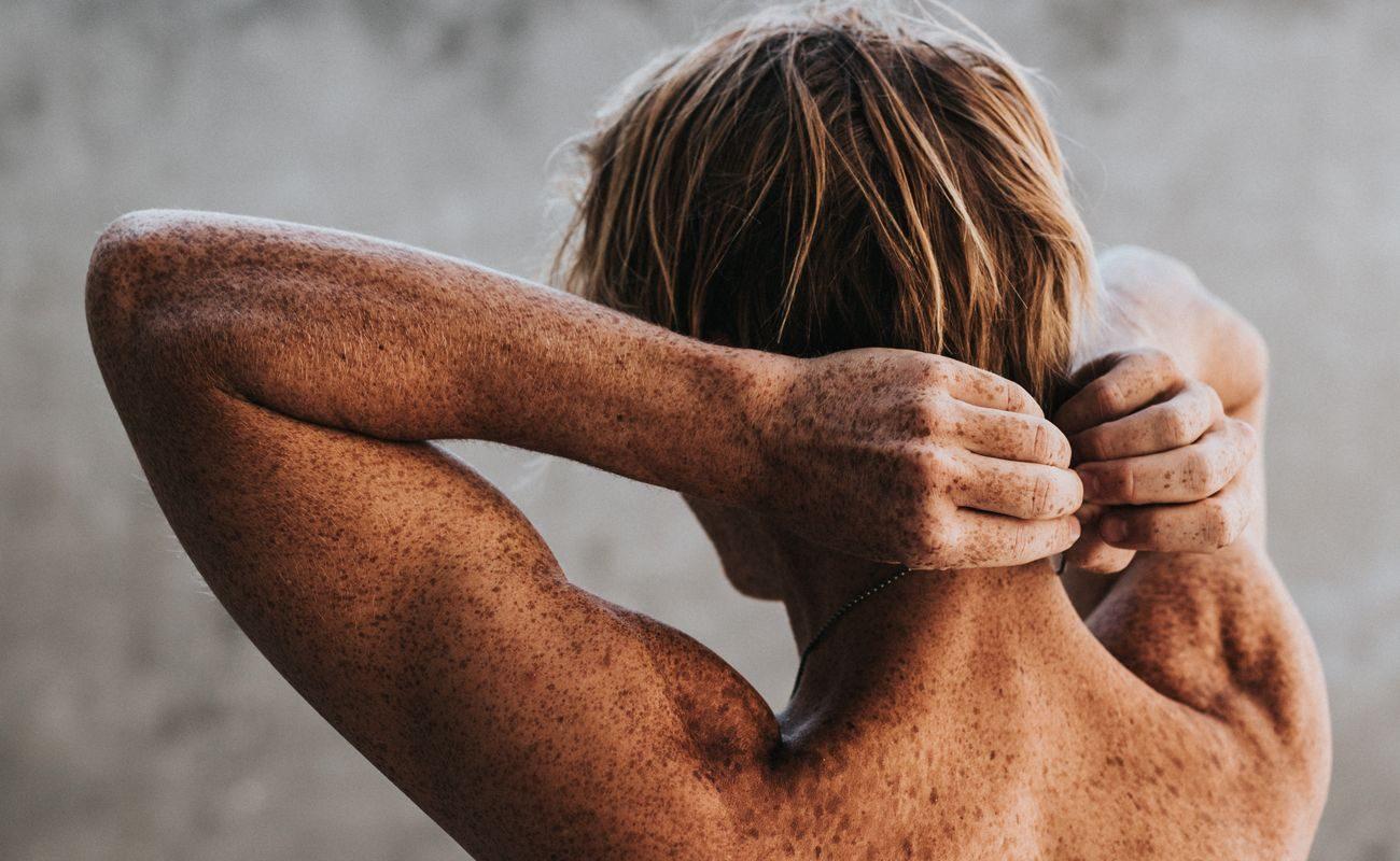 Męskie plecy z licznymi piegami i znamionami jako ilustracja tekstu o profilaktyce o nowotworach skórnych