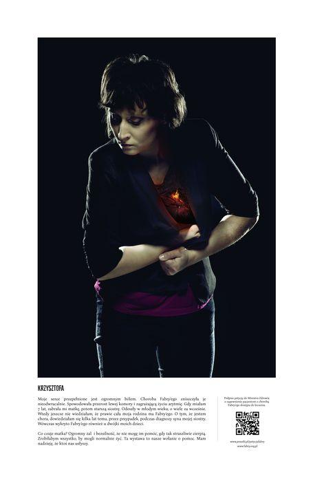 Zdjęcie kobiety chorej na chorobę Fabry'ego autorstwa Jacka Poremby
